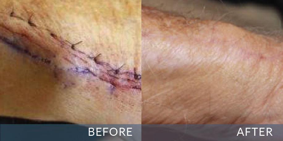 درمان اسکارهای پوستی